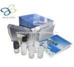 N-TZH (Neonlal thyroid stimulating hormone) 96 Test